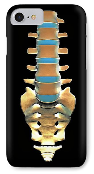 Lumbar Spine And Sacrum, Computer Artwork Phone Case by Pasieka