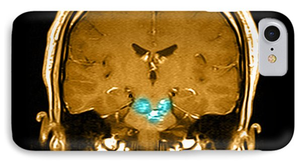 Mri Brainstem Cavernous Malformations Phone Case by Medical Body Scans