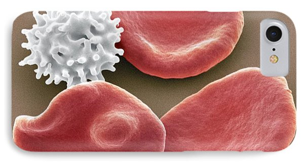 Healthy And Crenated Red Blood Cells, Sem Phone Case by Steve Gschmeissner