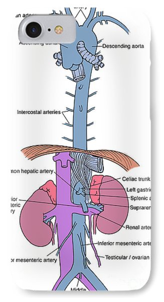 Illustration Of Aorta And Branches Phone Case by Science Source