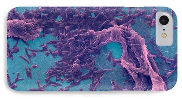 Legionella Pneumophila Sem Phone Case by Science Source