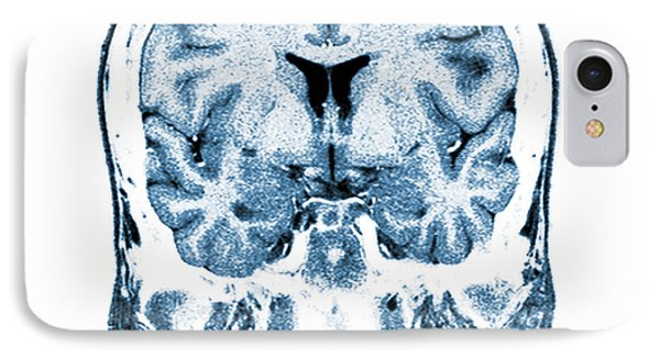 Normal Coronal Mri Of The Brain Phone Case by Medical Body Scans