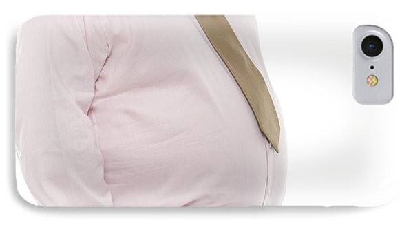 Overweight Man IPhone Case