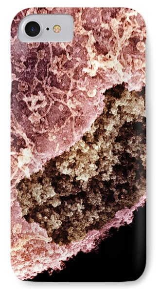 Cell Nucleus, Sem Phone Case by