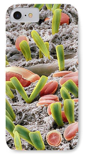 Diatoms, Sem Phone Case by Steve Gschmeissner
