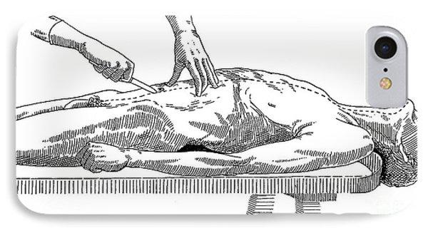 A Handbook Of Morbid Anatomy Phone Case by Science Source