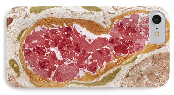 Abnormal Blood Clot, Tem Phone Case by Steve Gschmeissnercarol Upton