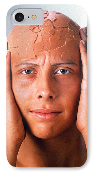 Abstract Image Of A Person With A Cracked Head IPhone Case