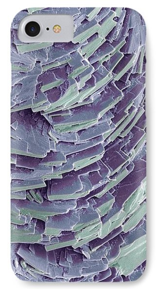 Antihistamine Drug Crystals, Sem Phone Case by Steve Gschmeissner