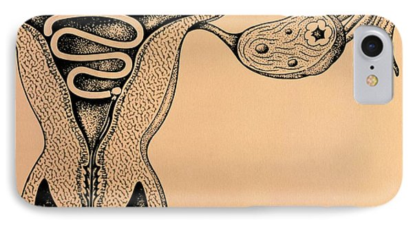Artwork Of An Intrauterine Device In The Uterus Phone Case by John Bavosi