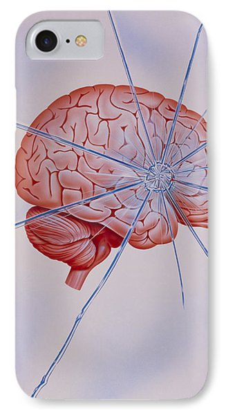 Artwork Of Brain With Shattered Glass Superimposed IPhone Case