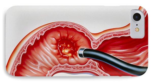 Artwork Of Duodenal Ulcer & Endoscope IPhone Case by John Bavosi