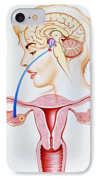 Artwork Showing Mechanism Of Oral Contraception Phone Case by John Bavosi