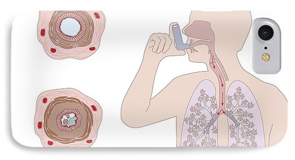 Asthma Pathology And Treatment, Diagram Phone Case by Peter Gardiner