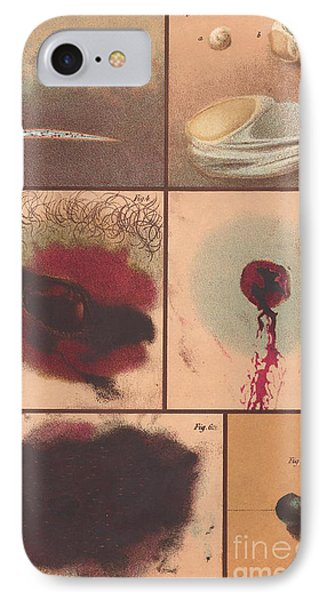 Bloodstain, Blisters, Bullet Holes, 1864 Phone Case by Science Source