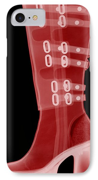 Boot, X-ray Phone Case by Ted Kinsman