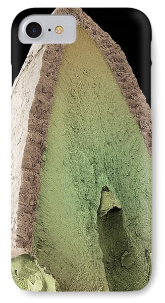 Cat's Tooth, Sem Phone Case by Steve Gschmeissner