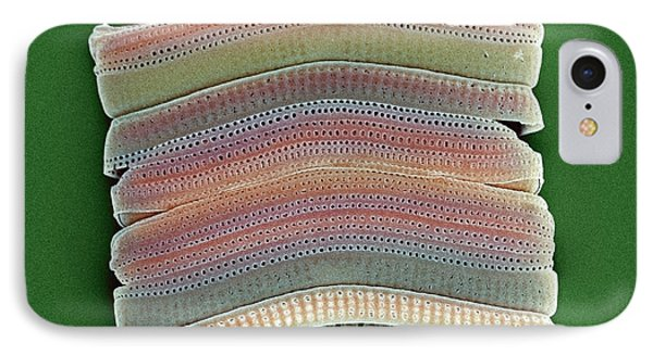 Colonial Diatom, Sem IPhone Case by Steve Gschmeissner
