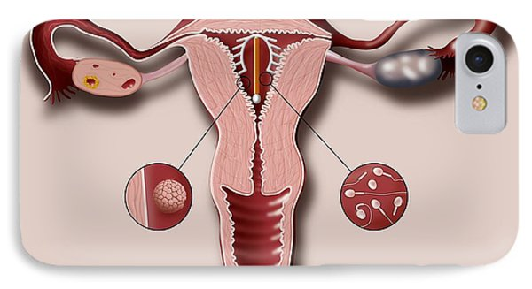Contraceptive Coil In Uterus, Artwork Phone Case by Art For Science