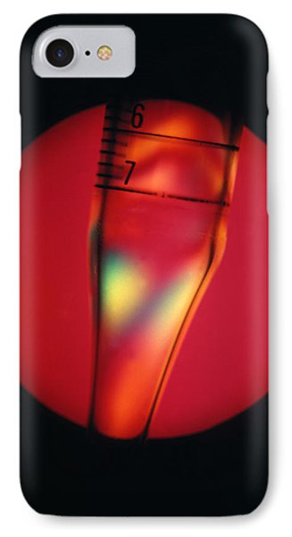Defective Plastic, Light Micrograph Phone Case by Mark Sykes