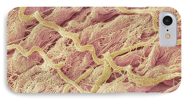 Dense Connective Tissue, Sem Phone Case by Steve Gschmeissner