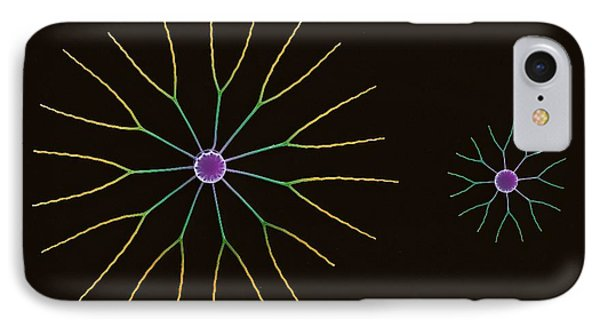 Diatom Algae, Sem Phone Case by Steve Gschmeissner