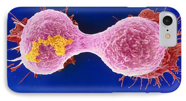 Dividing Breast Cancer Cell Phone Case by Steve Gschmeissner