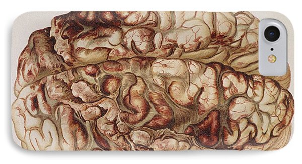 Encircling Gunshot-wound In Brain, 1898 Phone Case by Science Source