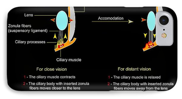 Eye Lens And Accommodation, Diagram Phone Case by Francis Leroy, Biocosmos