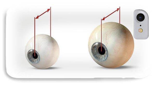 Eye Size Comparison, Artwork Phone Case by Claus Lunau
