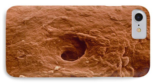 False-colour Sem Of Human Skin From A Blister IPhone Case