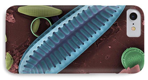 Freshwater Diatom, Sem IPhone Case by Ted Kinsman