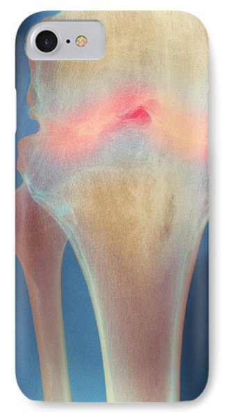 Fused Knee Joint, X-ray Phone Case by