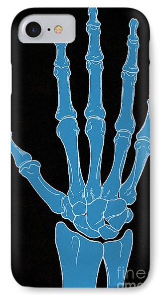 Hand And Wrist Bones Phone Case by Science Source