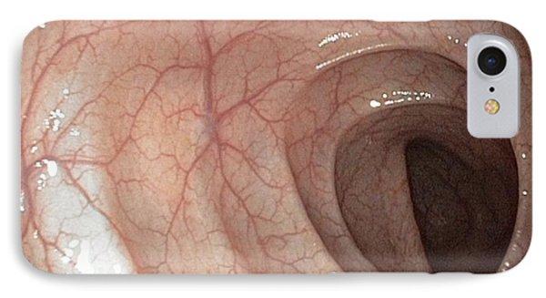Healthy Colon, Large Intestine Phone Case by Gastrolab
