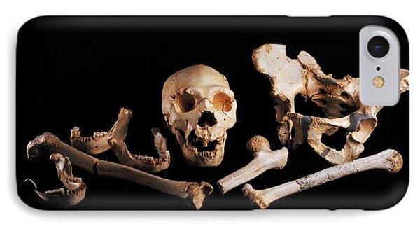 Human Fossils, Sima De Los Huesos Phone Case by Javier Truebamsf