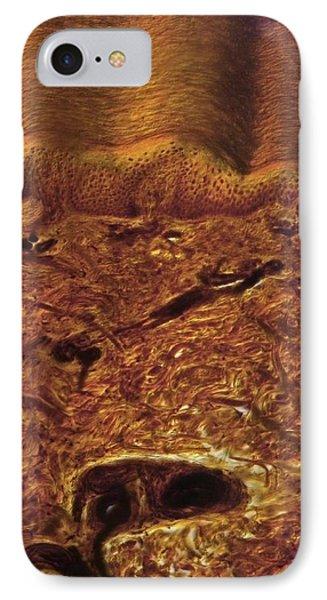 Human Skin, Light Micrograph Phone Case by Robert Markus