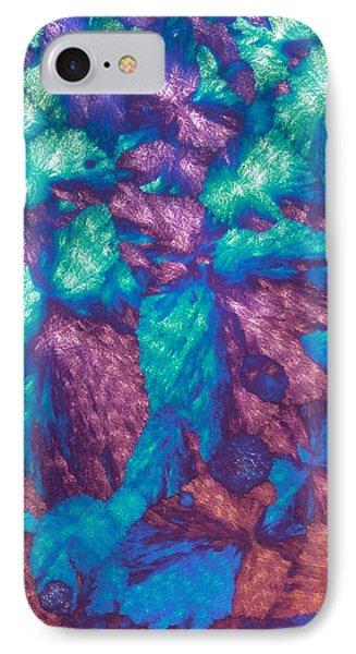 Immunoglobulin Crystals, Light Micrograph Phone Case by David Parker