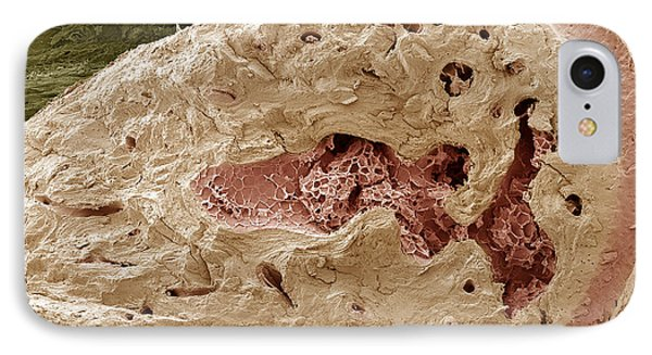 Interior Of A Bone, Sem IPhone Case by Steve Gschmeissner