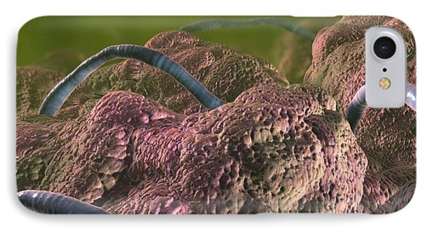 Intestinal Parasites, Artwork Phone Case by David Mack