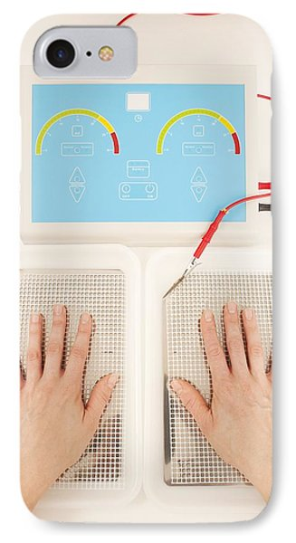 Iontophoresis For Excess Sweating Phone Case by