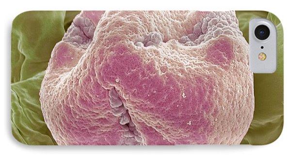 Kiwi Fruit Pollen Grain, Sem Phone Case by Steve Gschmeissner