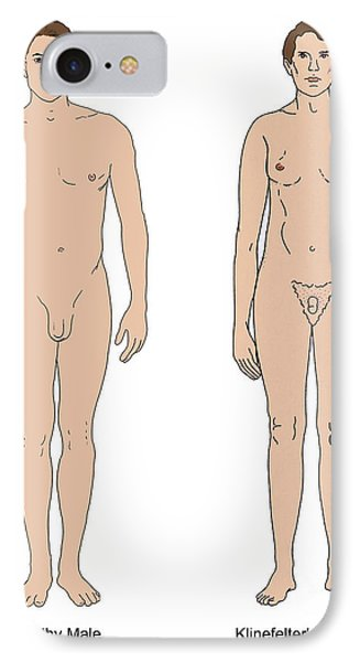 Klinefelters Syndrome & Healthy Male Phone Case by Science Source