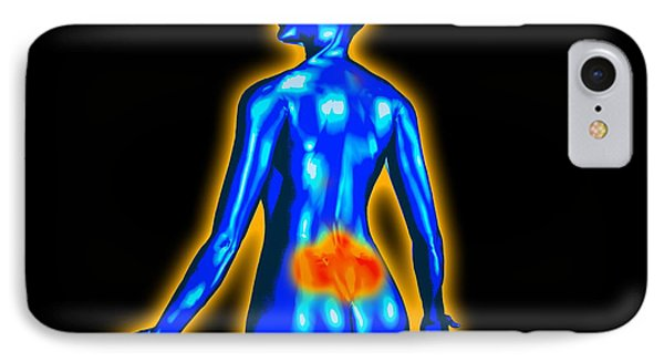 Lower Back Pain Phone Case by Christian Darkin