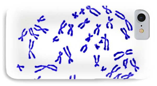 Male Karyotype Phone Case by Science Source