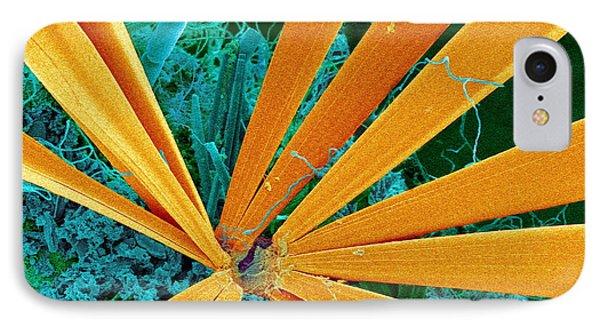 Marine Diatom Algae, Sem Phone Case by Susumu Nishinaga
