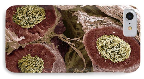 Maturing Sperm, Sem Phone Case by Steve Gschmeissner