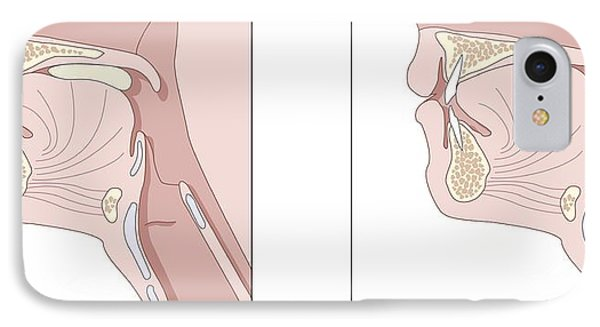 Mechanics Of Swallowing  Diagram Photograph By Peter Gardiner