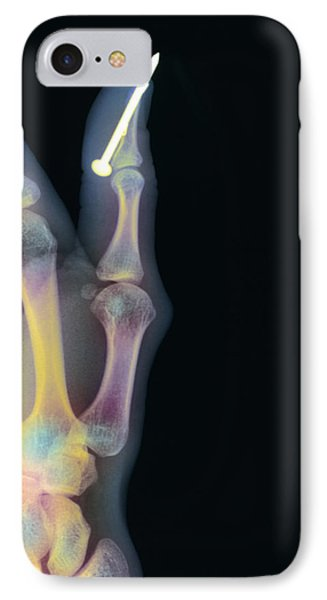 Nail In Thumb X-ray IPhone Case