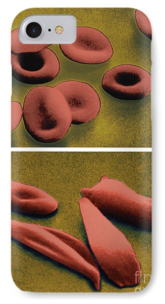 Normal And Sickle Red Blood Cells Phone Case by Omikron